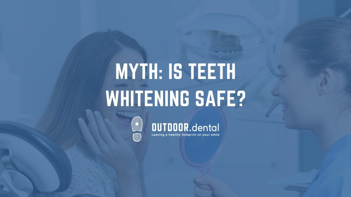 teeth whitening safe