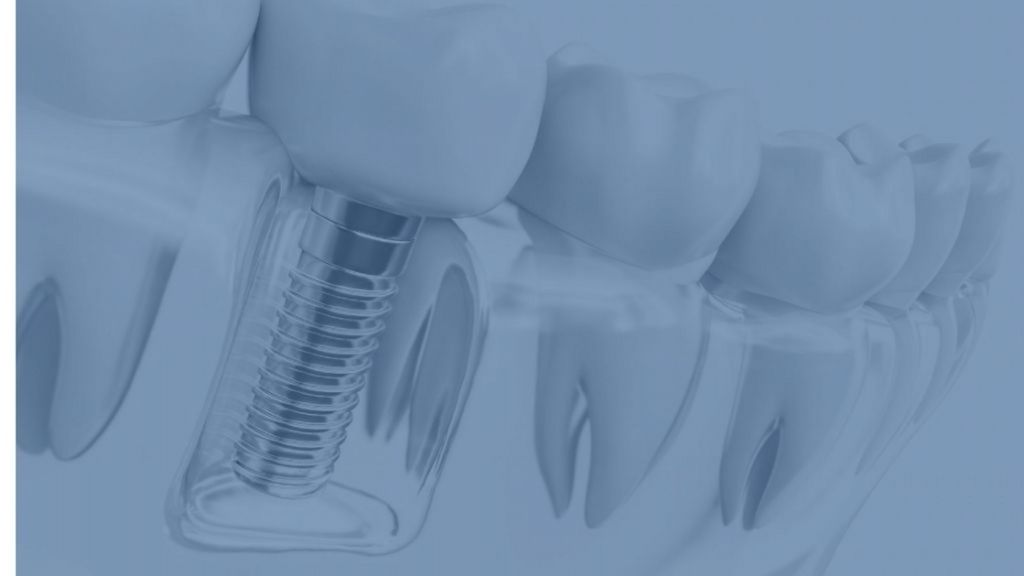 dental implants calgary se