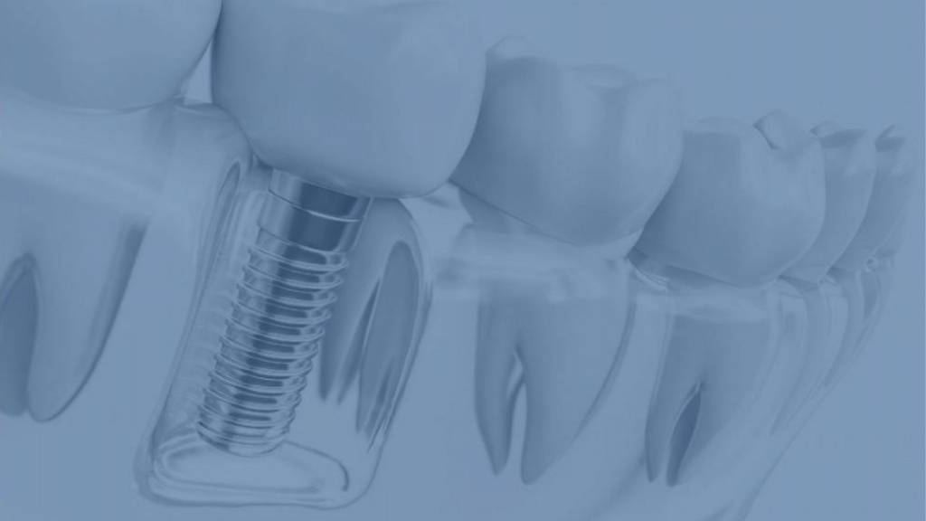 dental implants calgary se