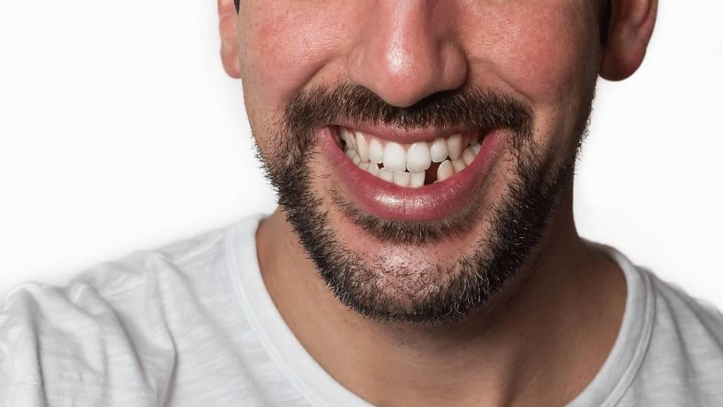 missing teeth calgary se setong