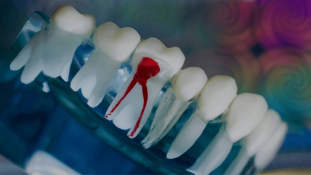 root canal calgary se