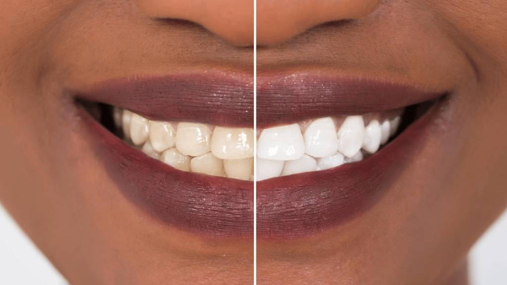 teeth whitening calgary se seton