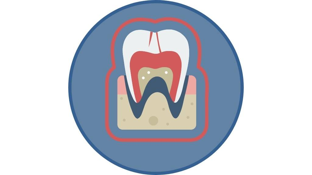 tooth extraction calgary se
